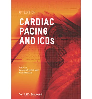 cardiac pacemaker business With the advent of the artificial pacemaker, doctors the world over have been able  to prolong the lives of millions.