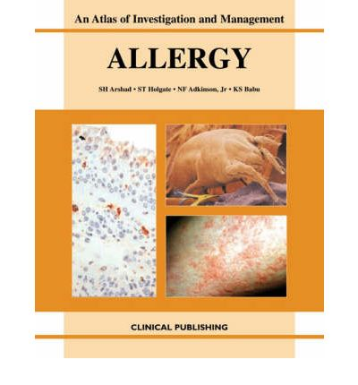 Allergy : An Atlas of Investigation and Diagnosis