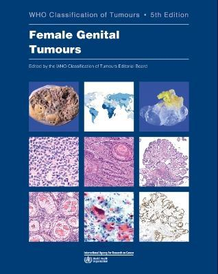 WHO classification of female genital tumours